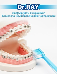 Orthodontic V_From China-006